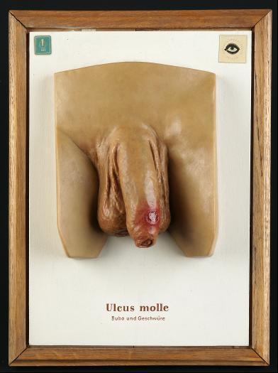 Ulcus molle