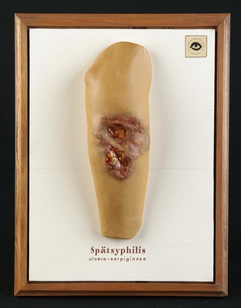 Spätsyphilis