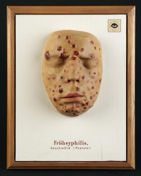 Frühsyphilis