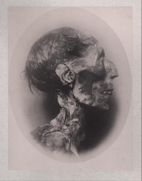 Mumie Ramses II., Kopf, Fotografie